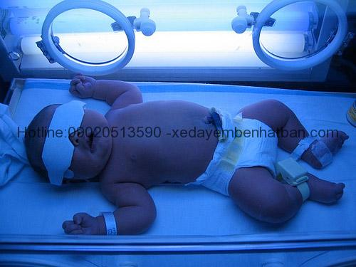 Tất tần tật về bệnh vàng da ở trẻ sơ sinh