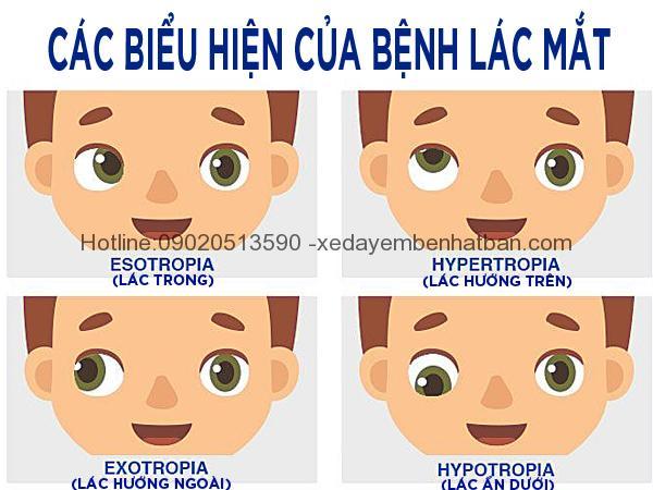 Các bệnh về mắt thường gặp ở trẻ em 58