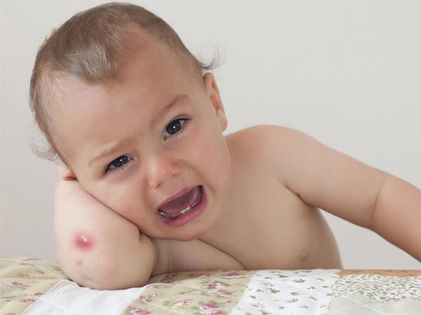Bảo vệ da bé khỏi những vết mụn nhọt